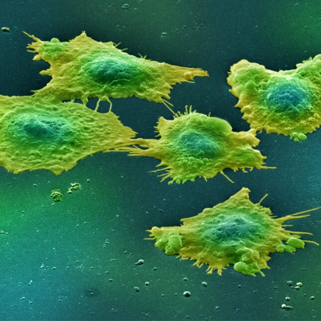 green colon cancer cells