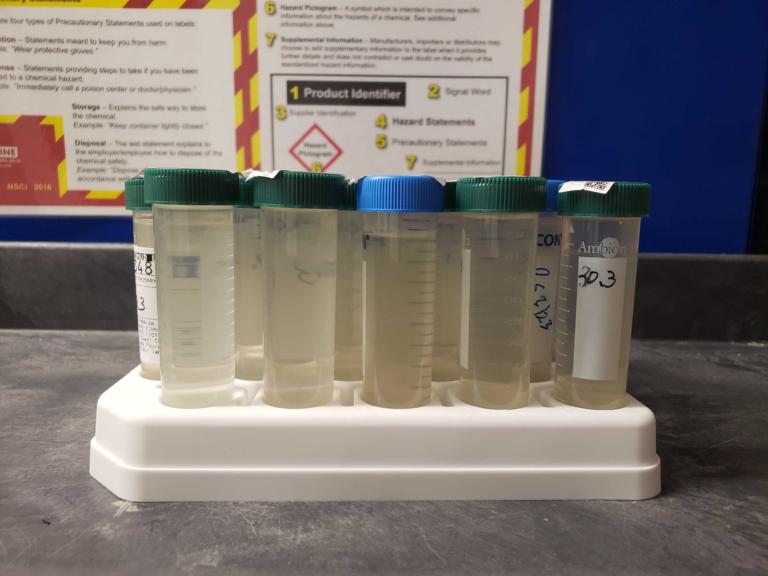 Sewage samples