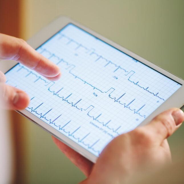 EKG tablet heart monitoring