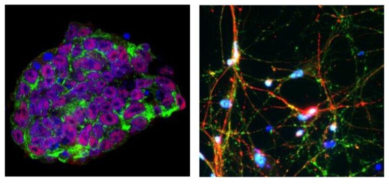 Cells Parkinsons