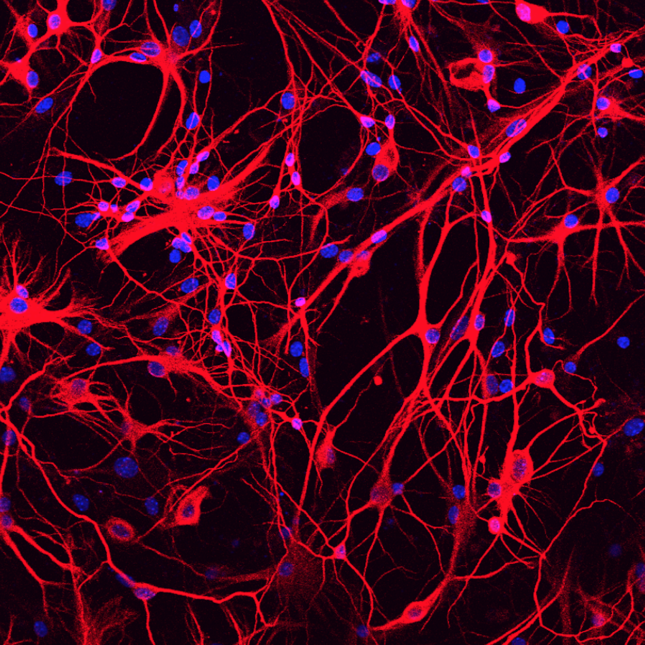 Fu-mouse-astrocytes-neurons