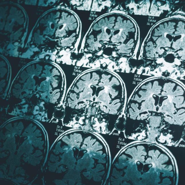 Alz MRI