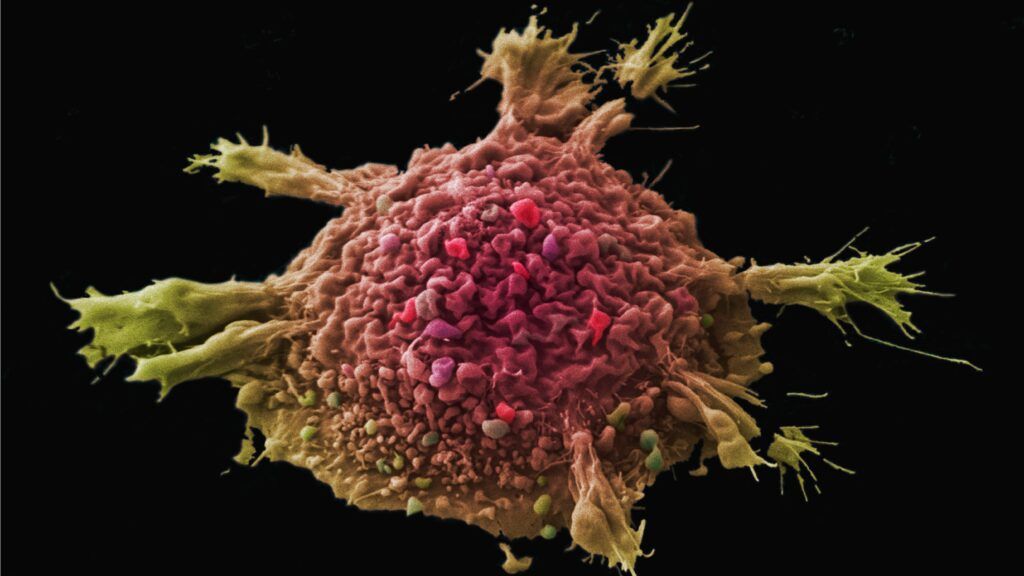 Blueprint Medicines partners with Roche on targeted cancer drug
