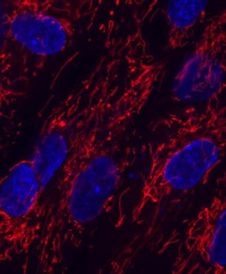 red mitochondria