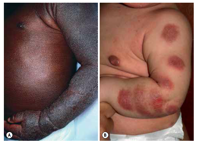 atopic dermatitis in infants