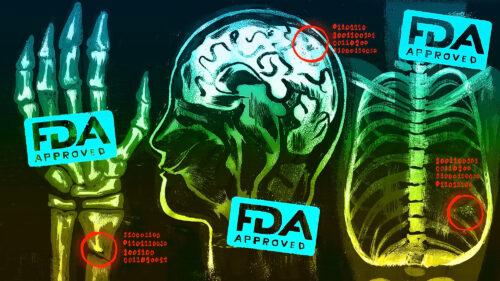 AI FDA Approval