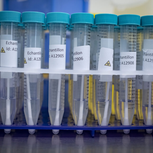 MARSEILLE, FRANCE - wastewater-based epidemiology