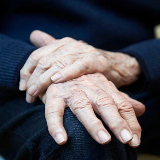 Parkinson's disease hands