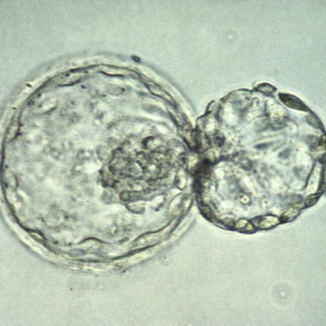 human blastocyst