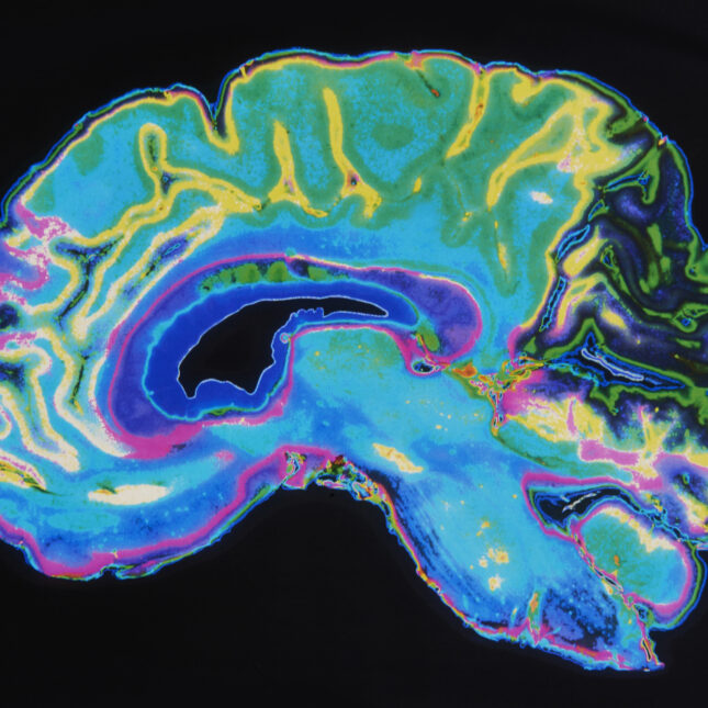 colorful brain MRI