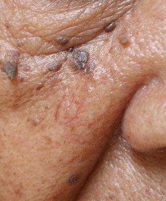 face close-up