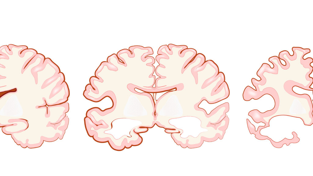 Alzheimer's scientists critique Cassava Sciences' study results