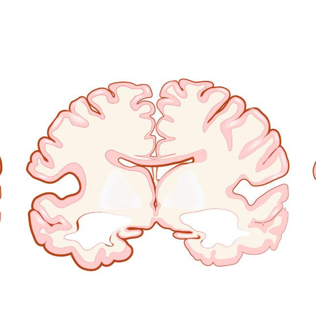 dementia alzheimer's disease progression