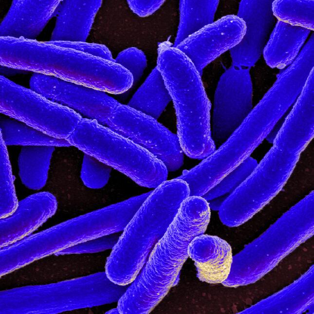 E. coli Bacteria micrograph