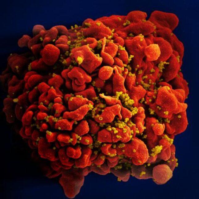 Red AIDS Virus