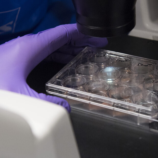 drug price controls would limit cancer research